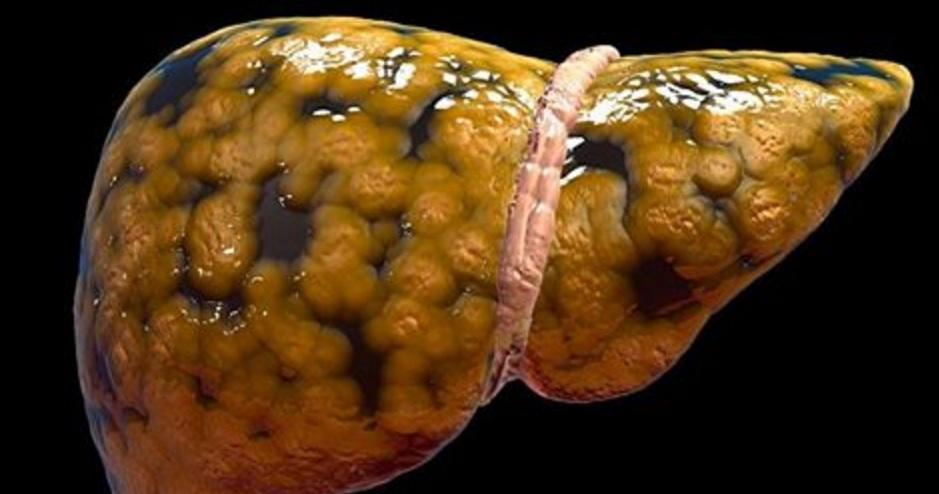 Comment réduire naturellement les graisses du foie ?